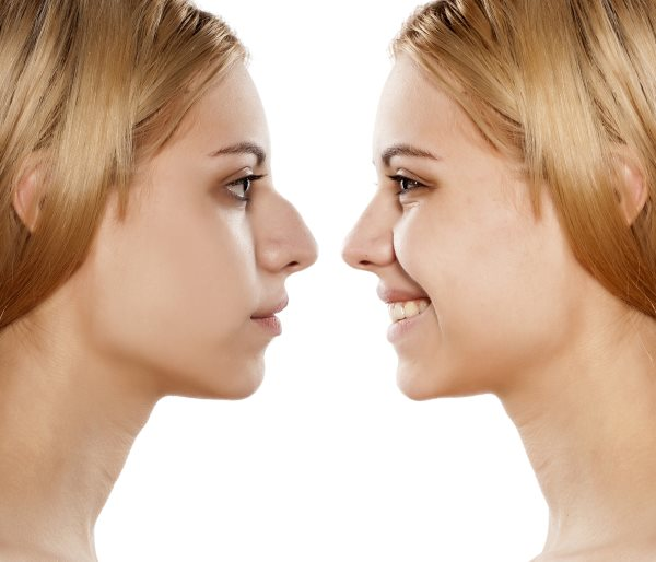 Allure Plastic Surgery Blog | 12 Important Topics to Cover at Your Rhinoplasty Surgical Consultation