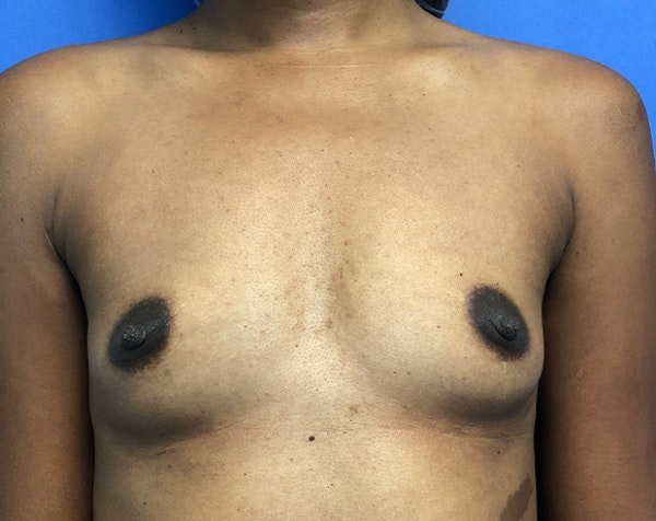 Breast Augmentation Gallery - Patient 5883052 - Image 1