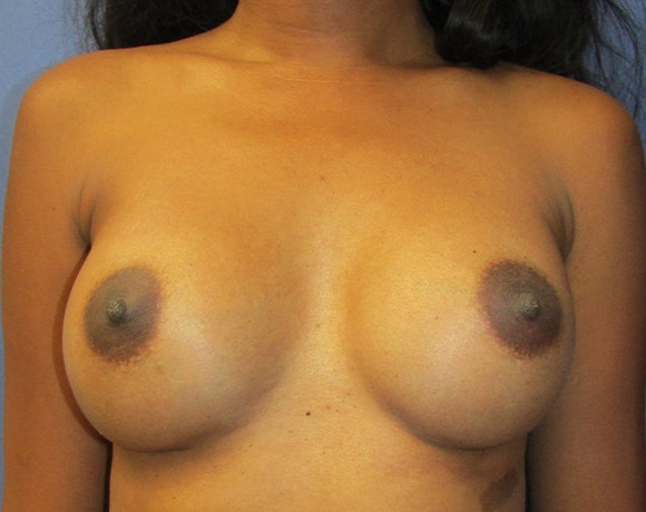 Breast Augmentation Gallery - Patient 5883052 - Image 2