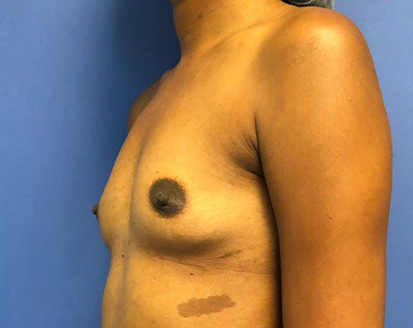 Breast Augmentation Gallery - Patient 5883052 - Image 3