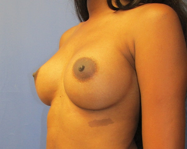 Breast Augmentation Gallery - Patient 5883052 - Image 4