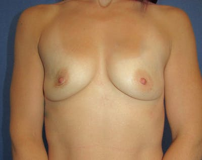 Breast Augmentation Gallery - Patient 5883059 - Image 1