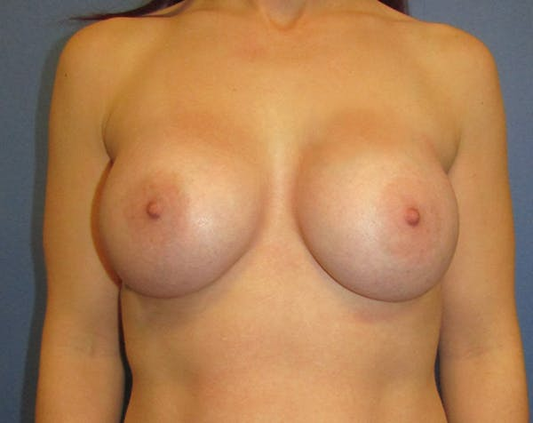 Breast Augmentation Gallery - Patient 5883059 - Image 2
