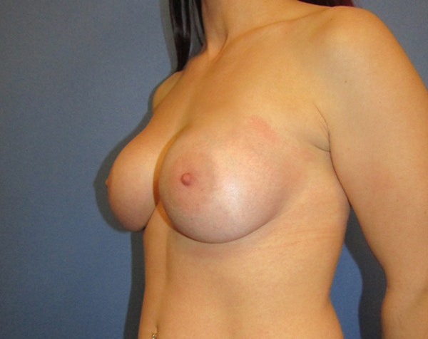 Breast Augmentation Gallery - Patient 5883059 - Image 4