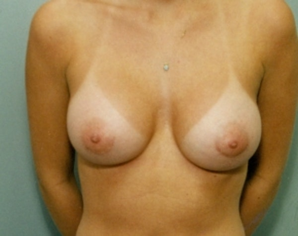 Breast Augmentation Gallery - Patient 5883060 - Image 2
