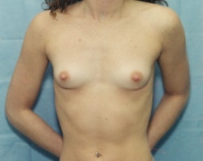 Breast Augmentation Gallery - Patient 5883061 - Image 1