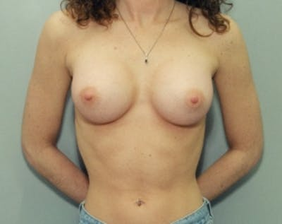 Breast Augmentation Gallery - Patient 5883061 - Image 4