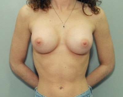 Breast Augmentation Gallery - Patient 5883061 - Image 2