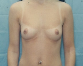 Breast Augmentation Gallery - Patient 5883063 - Image 1