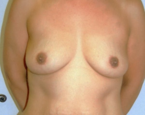 Breast Augmentation Gallery - Patient 5883065 - Image 1