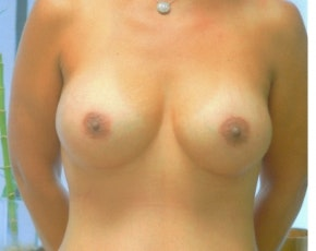 Breast Augmentation Gallery - Patient 5883065 - Image 2