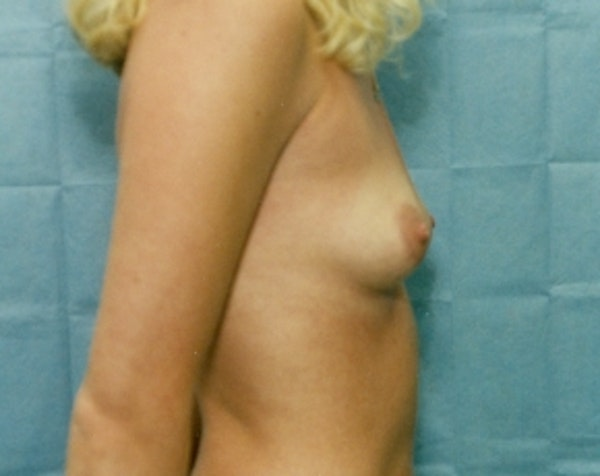 Breast Augmentation Gallery - Patient 5883066 - Image 1
