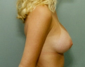 Breast Augmentation Gallery - Patient 5883066 - Image 2