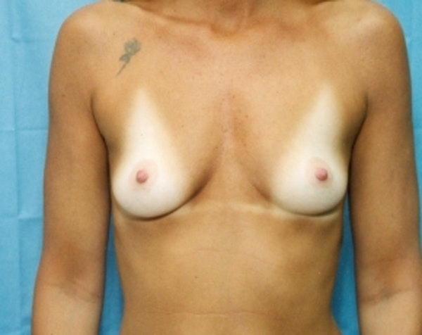 Breast Augmentation Gallery - Patient 5883067 - Image 1