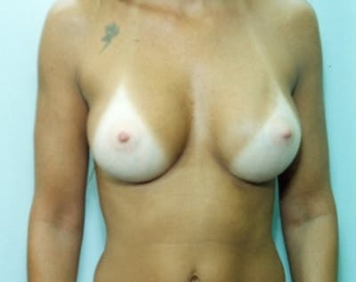 Breast Augmentation Gallery - Patient 5883067 - Image 8