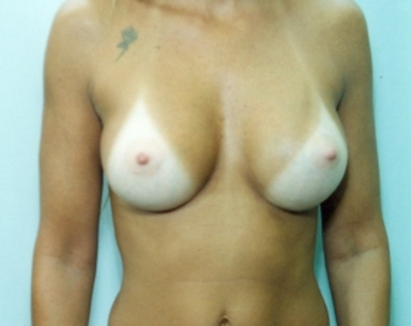 Breast Augmentation Gallery - Patient 5883067 - Image 2