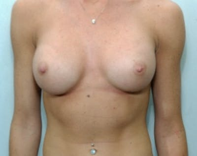 Breast Augmentation Gallery - Patient 5883068 - Image 2