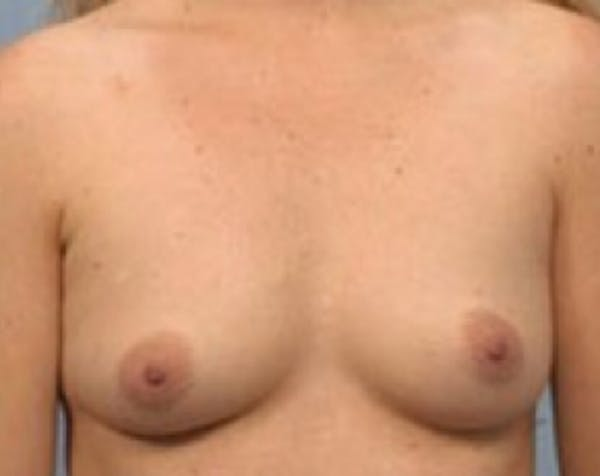 Breast Augmentation Gallery - Patient 5883069 - Image 1