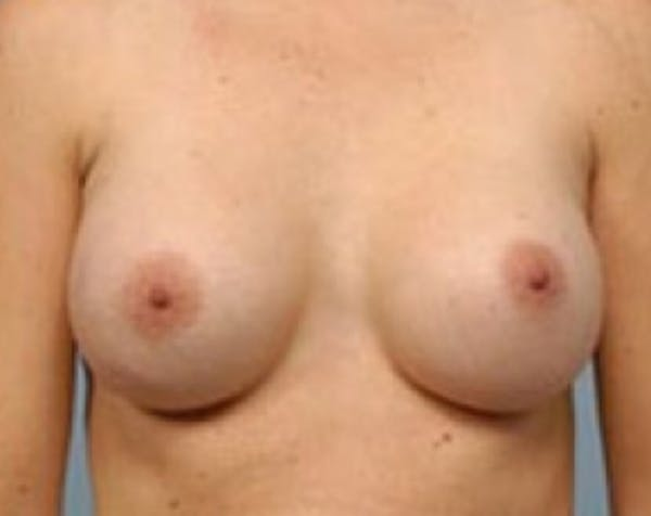 Breast Augmentation Gallery - Patient 5883069 - Image 2