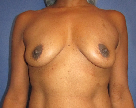 Breast Augmentation Gallery - Patient 5883070 - Image 1