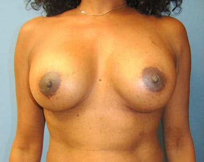 Breast Augmentation Gallery - Patient 5883070 - Image 11