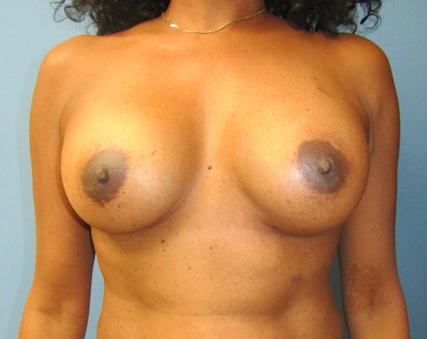 Breast Augmentation Gallery - Patient 5883070 - Image 2