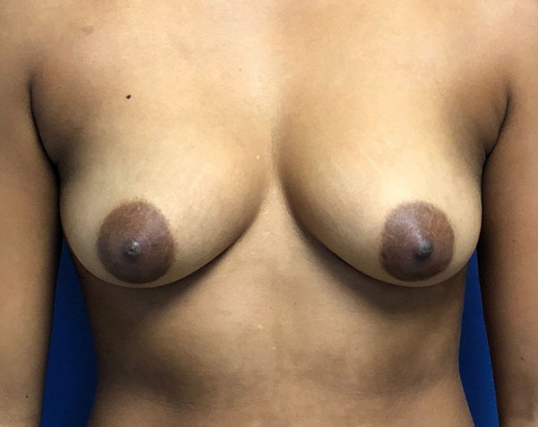 Breast Augmentation Gallery - Patient 5883169 - Image 1