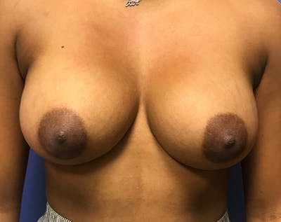 Breast Augmentation Gallery - Patient 5883169 - Image 12