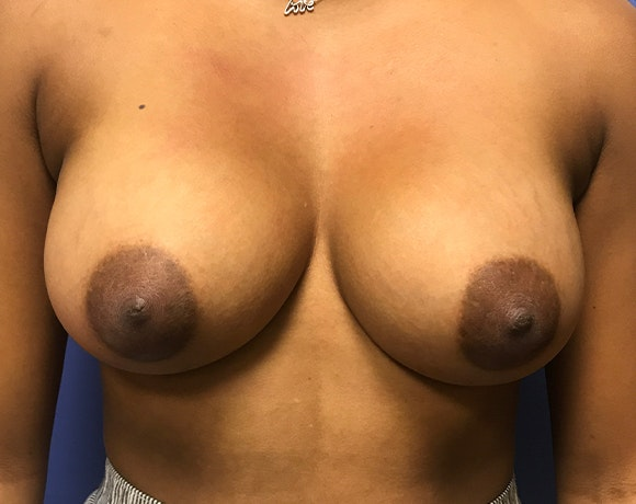Breast Augmentation Gallery - Patient 5883169 - Image 2