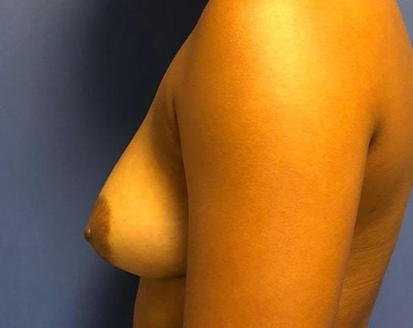 Breast Augmentation Gallery - Patient 5883169 - Image 3