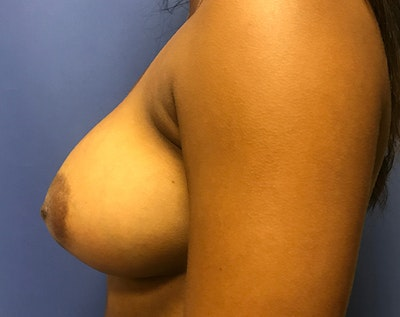 Breast Augmentation Gallery - Patient 5883169 - Image 4