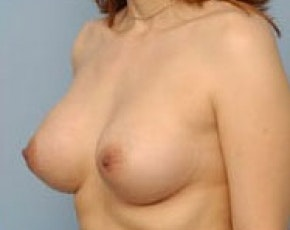 Breast Augmentation Gallery - Patient 5883170 - Image 2