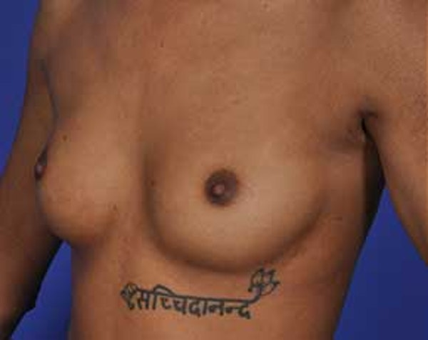 Breast Augmentation Gallery - Patient 5883171 - Image 1
