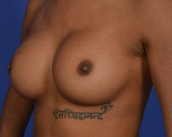 Breast Augmentation Gallery - Patient 5883171 - Image 2