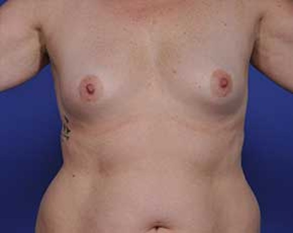 Breast Augmentation Gallery - Patient 5883175 - Image 1