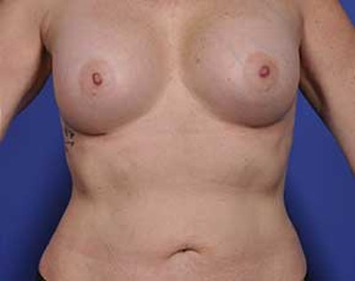 Breast Augmentation Gallery - Patient 5883175 - Image 2