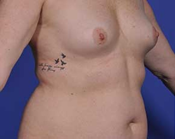 Breast Augmentation Gallery - Patient 5883175 - Image 3