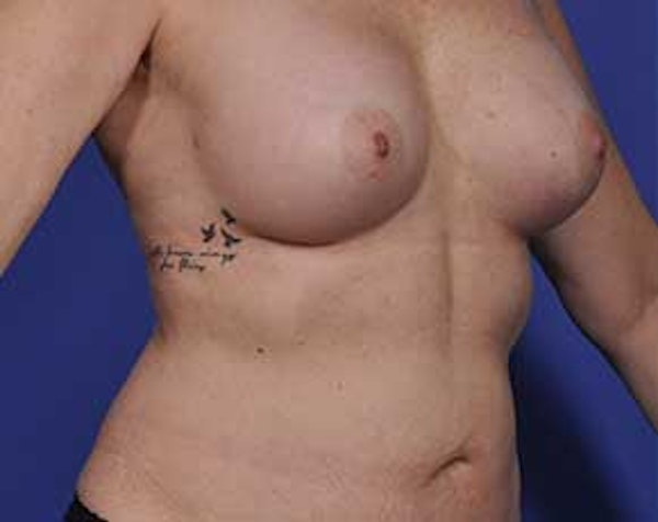 Breast Augmentation Gallery - Patient 5883175 - Image 4