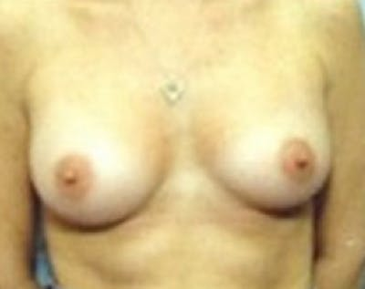 Breast Augmentation Gallery - Patient 5883181 - Image 16