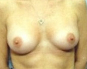 Breast Augmentation Gallery - Patient 5883181 - Image 2