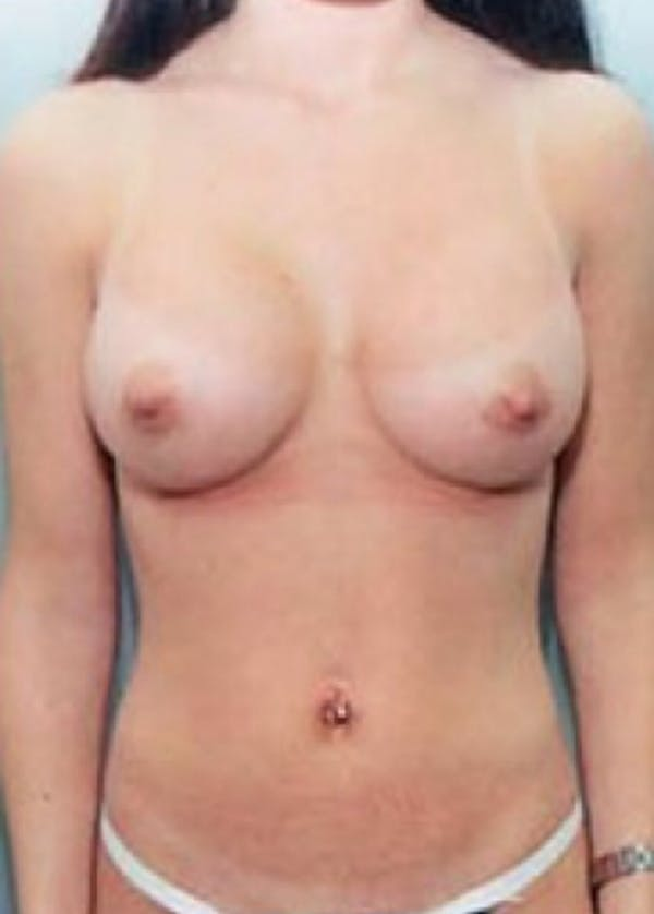 Breast Augmentation Gallery - Patient 5883183 - Image 2