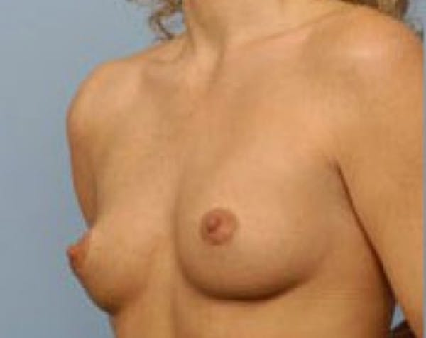 Breast Augmentation Gallery - Patient 5883191 - Image 1