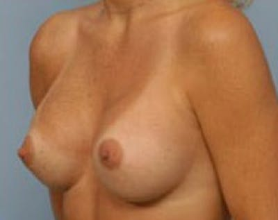 Breast Augmentation Gallery - Patient 5883191 - Image 18