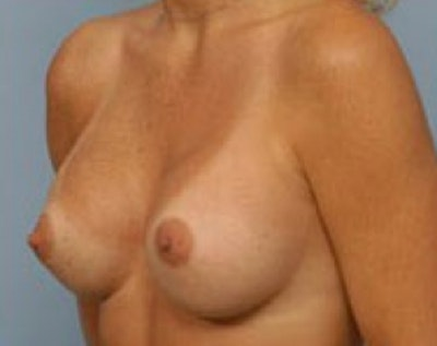 Breast Augmentation Gallery - Patient 5883191 - Image 2