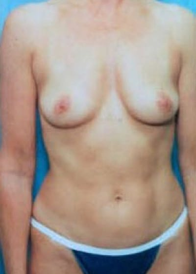 Breast Augmentation Gallery - Patient 5883192 - Image 1