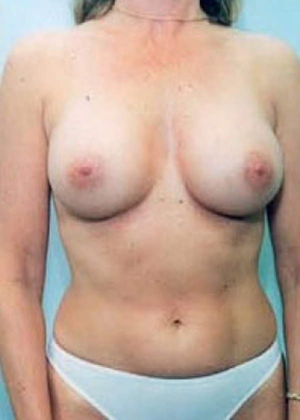 Breast Augmentation Gallery - Patient 5883192 - Image 2