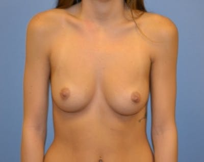 Breast Augmentation Gallery - Patient 5883193 - Image 1