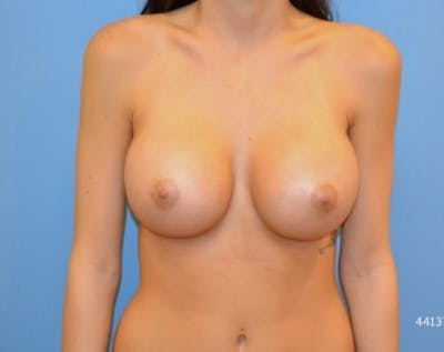 Breast Augmentation Gallery - Patient 5883193 - Image 20