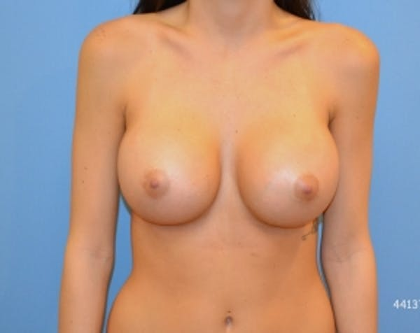 Breast Augmentation Gallery - Patient 5883193 - Image 2
