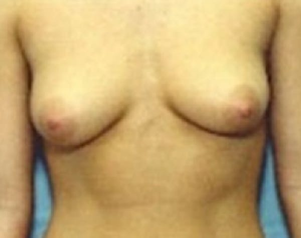 Breast Augmentation Gallery - Patient 5883194 - Image 1